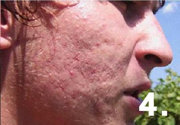 akné léčené biolampou Biostimul