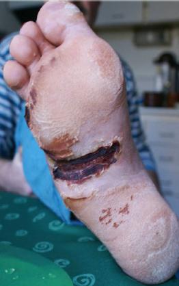 biostimul a diabetická noha