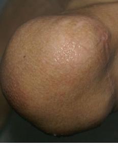 léčení pahýlu biolampou
