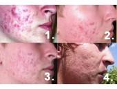 Léčba akné biolampou